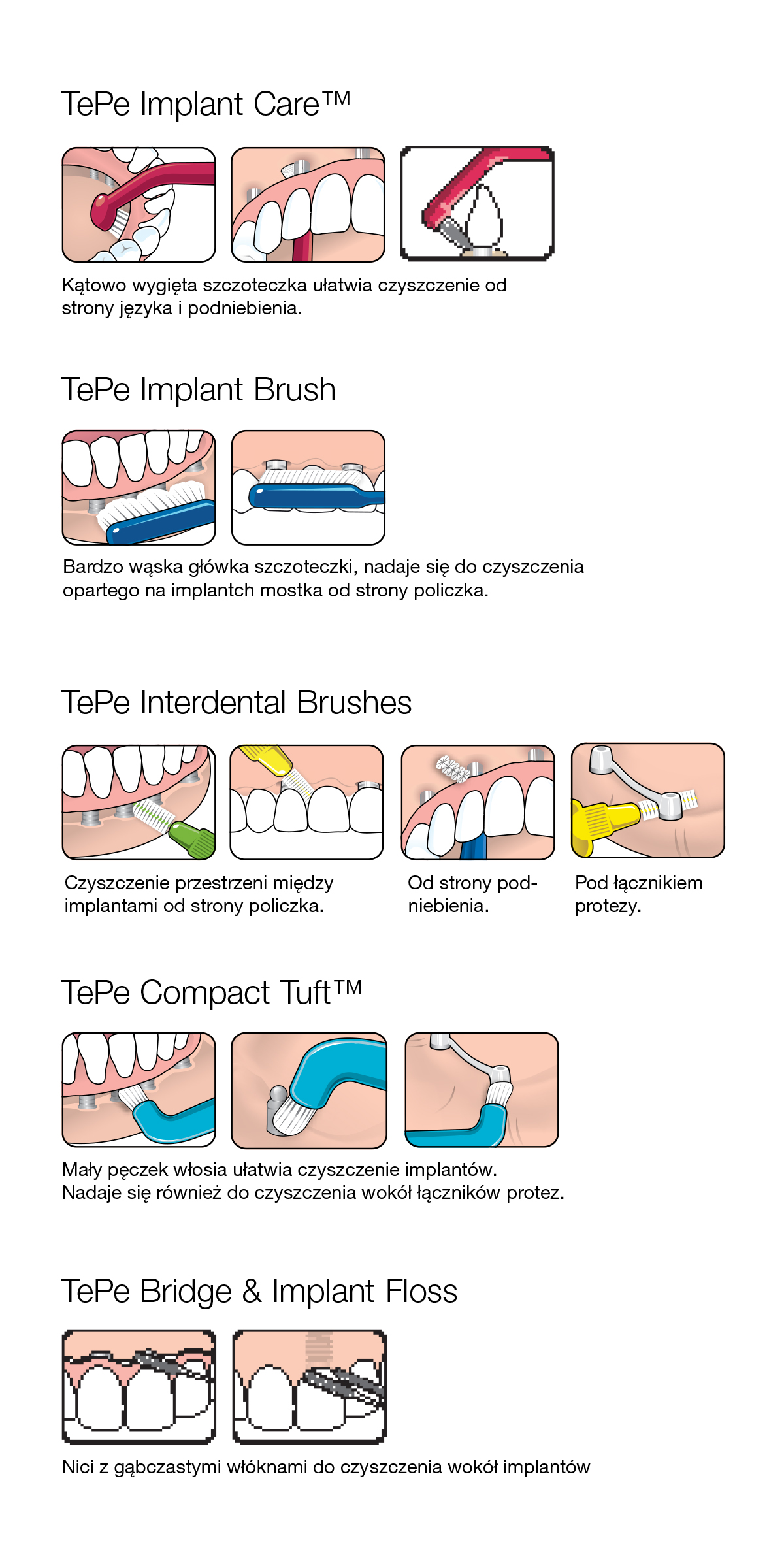 tepe_implant
